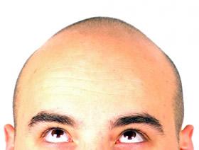baldhead2